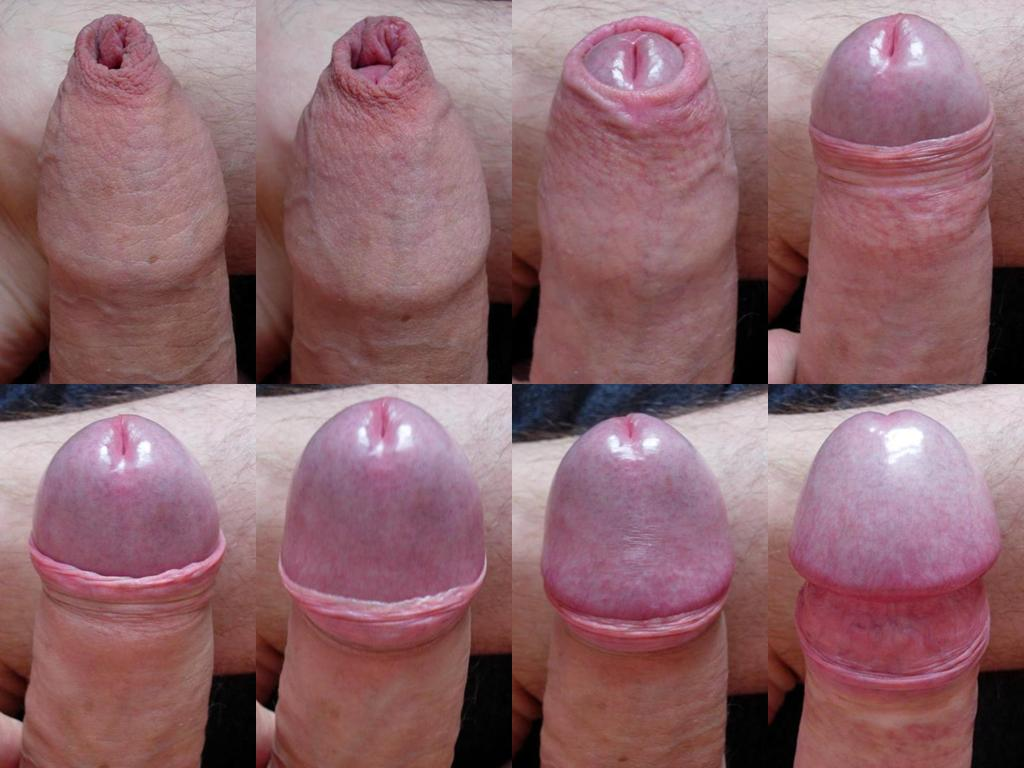 circumcised penis adult pictures iran