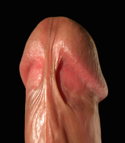An_image_of_frenulum_of_prepuce_of_penis