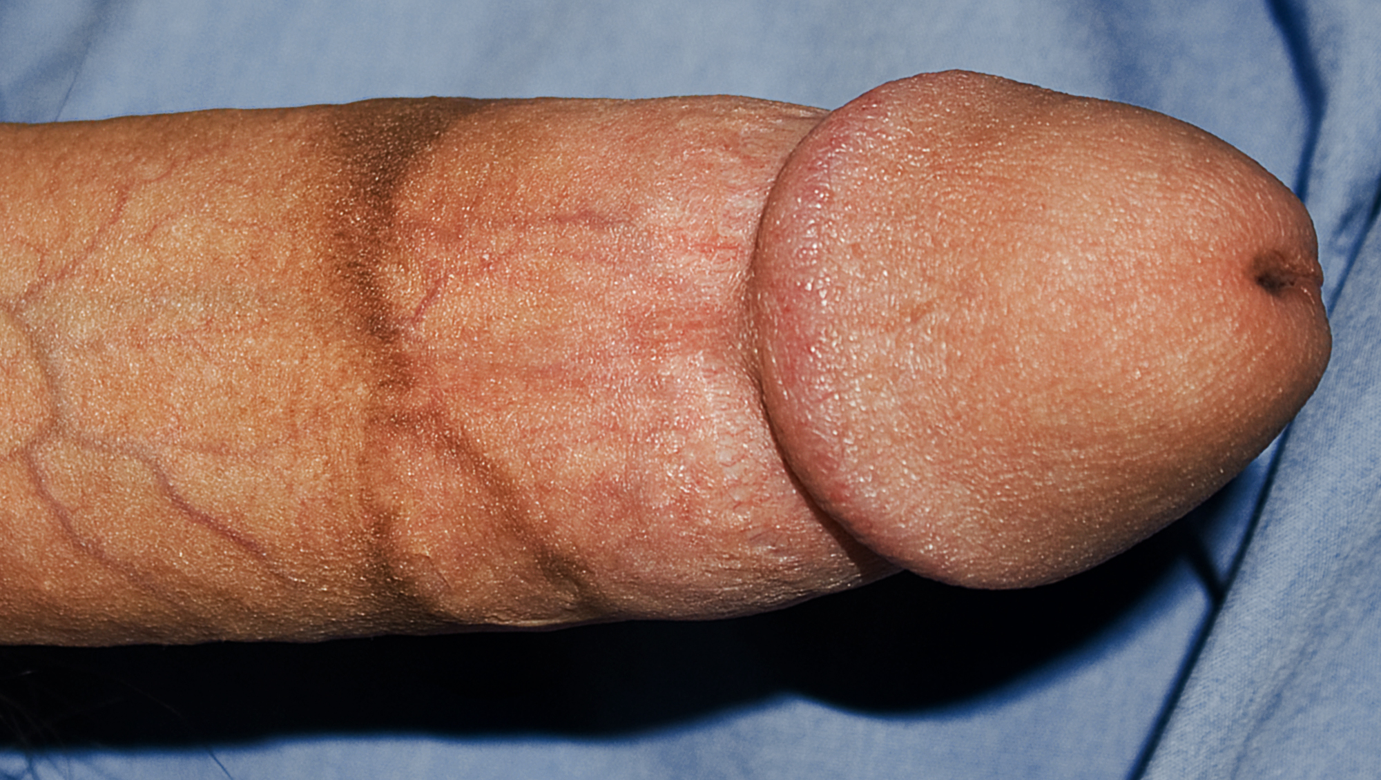 Circumcision scar on penis many
