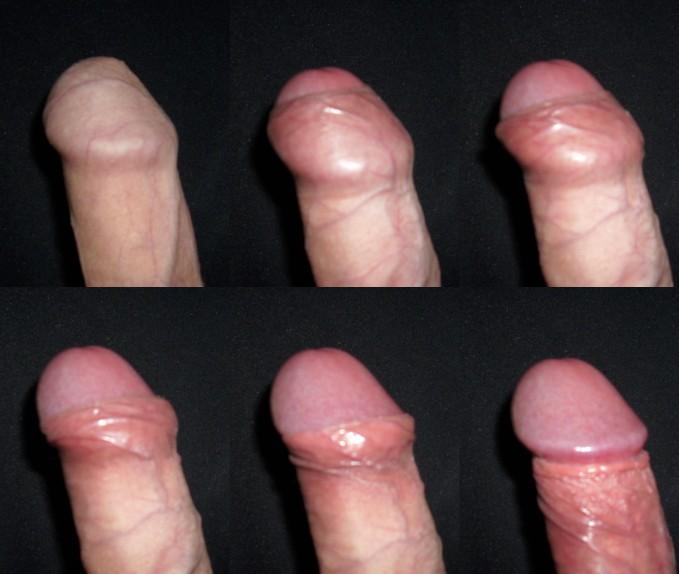 Male_foreskin
